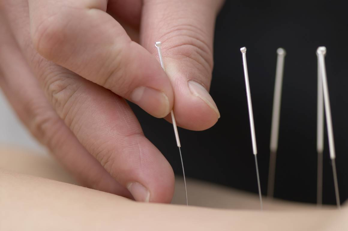 Product Registration of Acupuncture health product